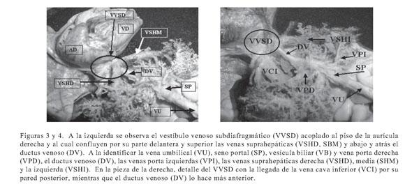 Anatomía vascular del sistema umbílico-porto-ductal en fetos de 20 a ...