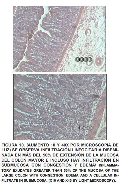 Obstrucción estrangulante del intestino grueso en equinos ...